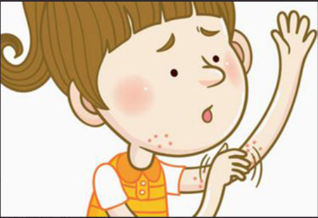 引起皮肤过敏的因素有哪些?